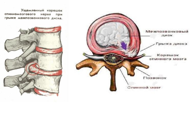 Нетрадиционной медицине лечение артроза